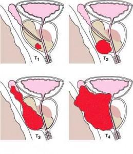 neoplasia della prostata cura