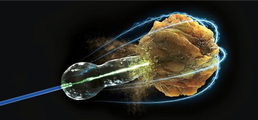 Ipertrofia prostatica e calcolosi, il laser migliore alleato dell'Urologo