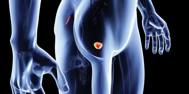 Disfunzione erettile e Sindrome dolorosa pelvica. L'efficacia delle onde d'urto